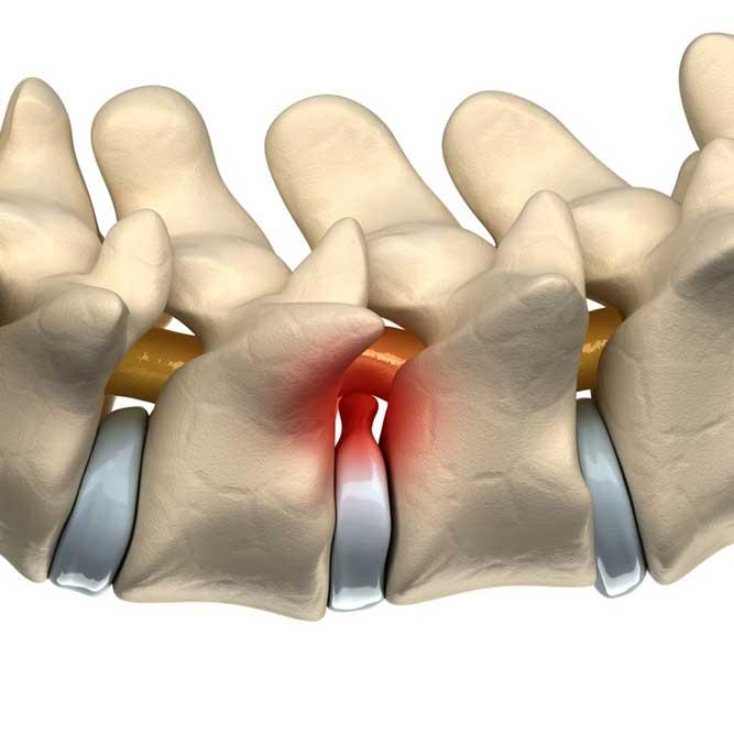 椎間板ヘルニアのイメージ画像